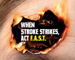 FAST stroke awareness logo