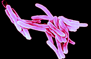 Tuberculosis - attribution: Sanofi Pasteur