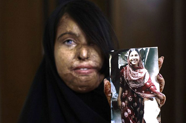 Naila, 23, shows a picture of herself before she became a victim of an acid attack. Picture: Acid Survivors Foundation