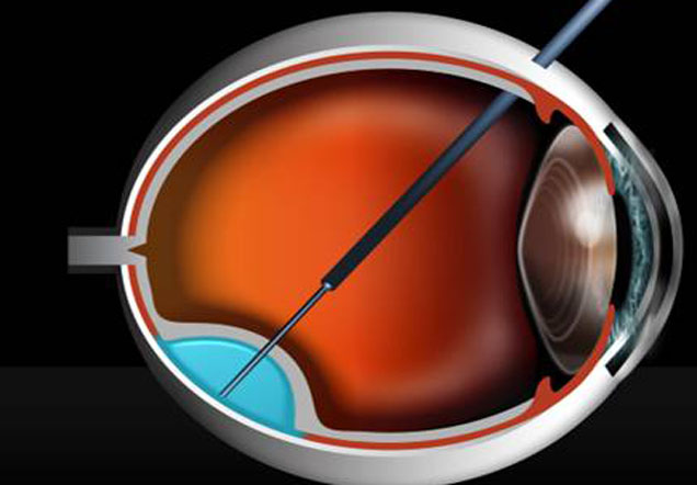 Diagram of the inside on the eye.