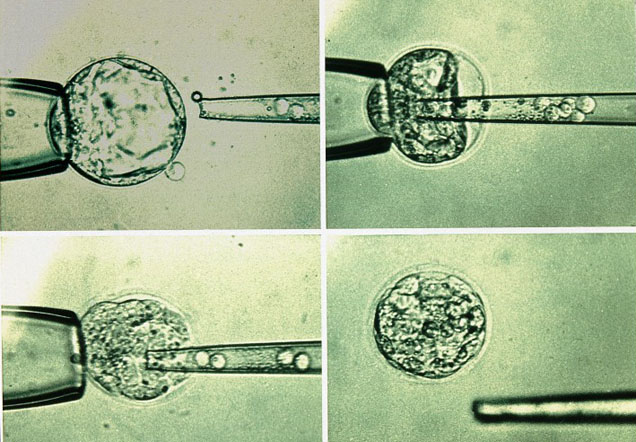 Four images showing a pipette injecting round dots into a cell.