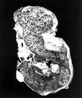 Image: A whole lung showing scarring from the inhalation of asbestos fibres