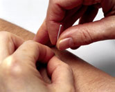 Image: Demonstrating acupuncture, 2000